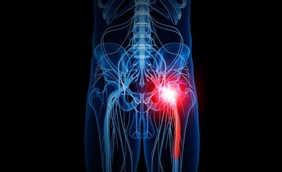 médico ortopédico ciática cerca de mí